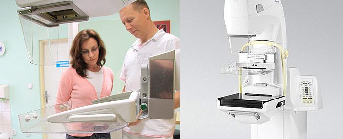 Digitálna mamografia